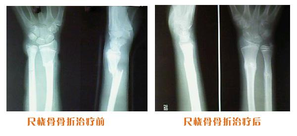 尺桡骨克雷氏骨折治疗前后