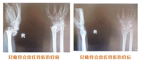 尺桡骨骨折治疗前后