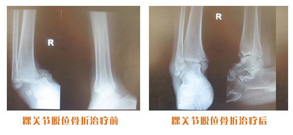 踝关节脱位骨折治疗前后对比