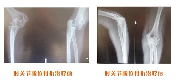 肘关节脱位骨折治疗前后对比